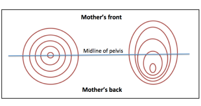 cervicaldilation